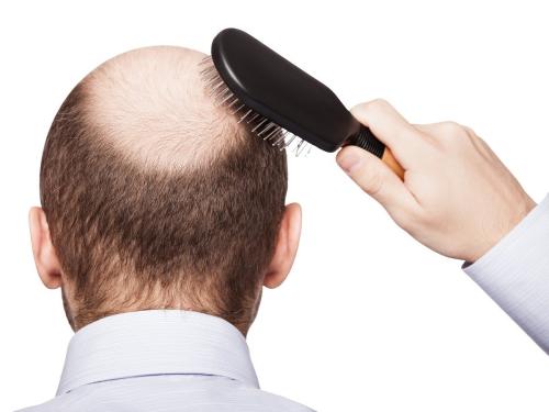 6 thủ phạm gây rụng tóc - Biết căn nguyên để điều trị hợp lý