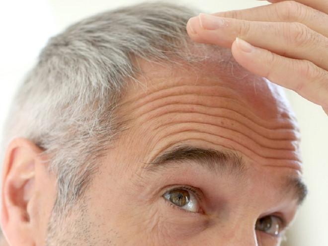 4 điều nhiều người chưa biết về tóc bạc