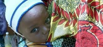 Cứu các bé song sinh và khuyết tật