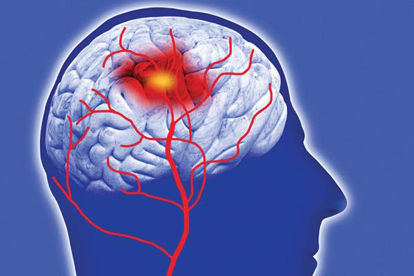 Gia tăng nguy cơ xuất huyết não khi sử dụng aspirin hàng ngày với liều thấp